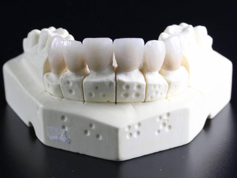 Protezy zębowe i korony